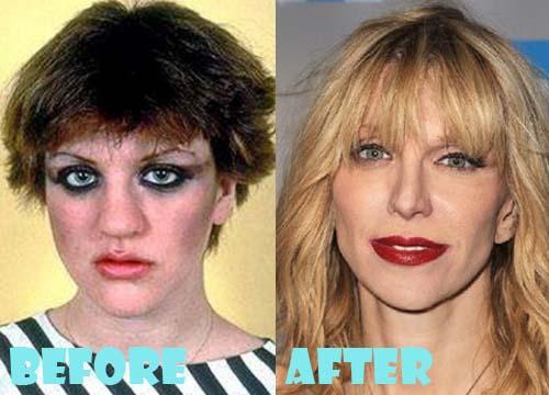 Courtney Love Plastic Surgery Nose Job