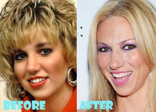 Debbie Gibson Plastic Surgery