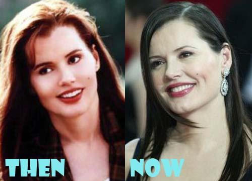 Geena Davis Plastic Surgery Botox, Facelift