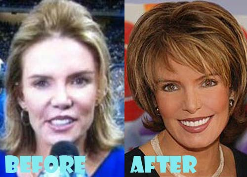 Lesley Visser Plastic Surgery Nose Job