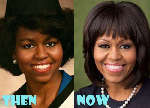 Michelle Obama Plastic Surgery Botox, Facelift