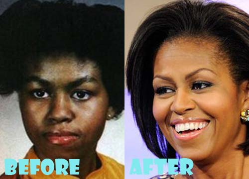Michelle Obama Plastic Surgery Nose Job
