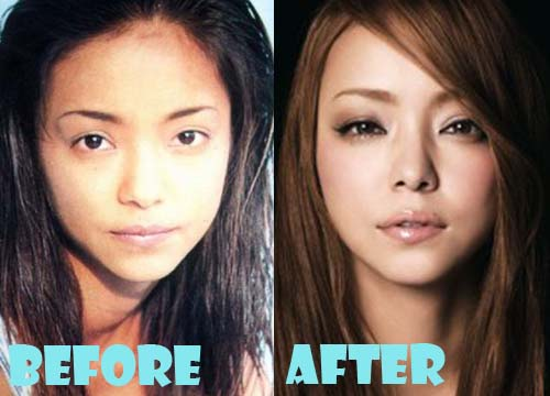 Namie Amuro Plastic Surgery