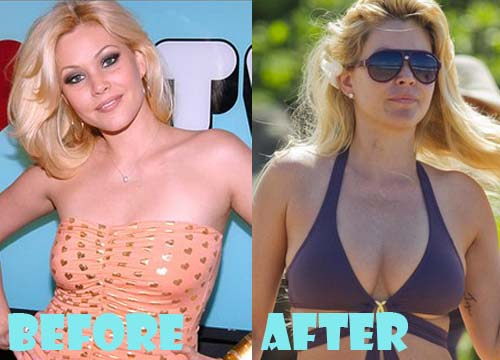 Shanna Moakler Plastic Surgery Breast Implant