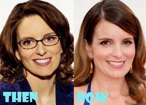 Tina Fey Plastic Surgery Botox