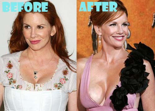 Melissa Gilbert Plastic Surgery Breast Implant