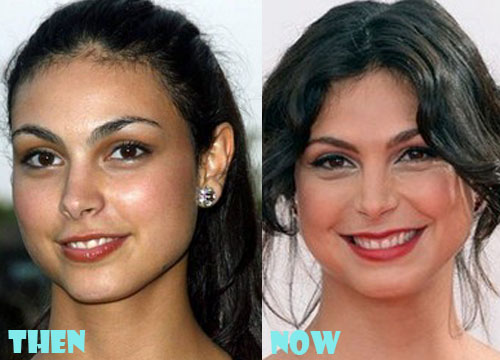 Morena Baccarin Plastic Surgery Botox, Facelift