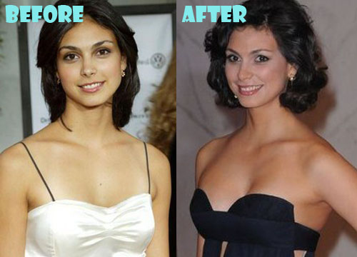 Morena Baccarin Plastic Surgery Breast Implant