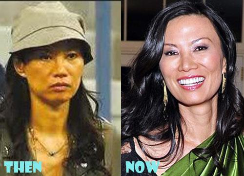 Wendi Deng Plastic Surgery Botox, Facelift