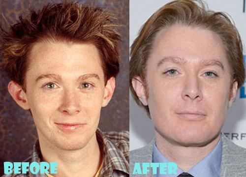 Clay Aiken Plastic Surgery Nose Job