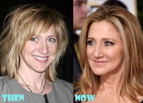 Edie Falco Plastic Surgery Botox