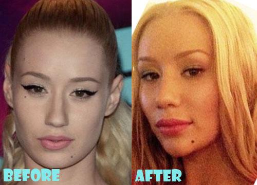 Iggy Azalea Plastic Surgery Lip & Chin Implant