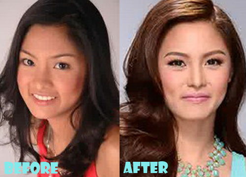 Kim Chiu Plastic Surgery Nose Job