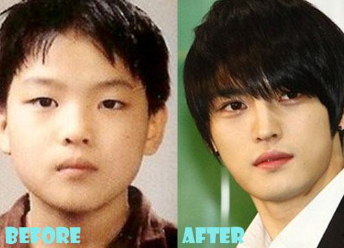 Kim Jaejoong Plastic Surgery Nose Job