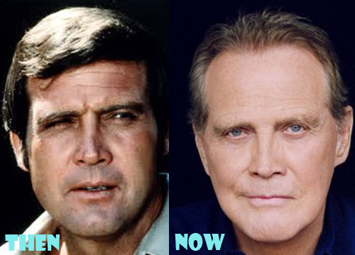 Lee Majors Bad Plastic Surgery