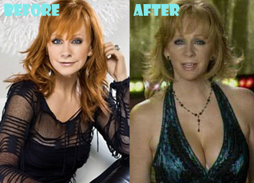 Reba McEntire Plastic Surgery Breast Implant