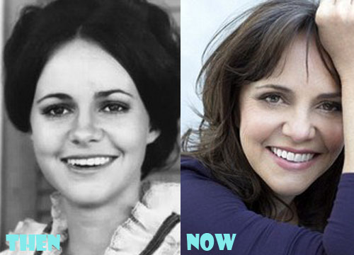 Sally Field Plastic Surgery Botox, Facelift