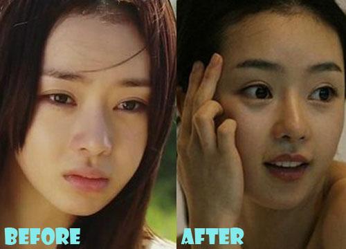 Seo Woo Plastic Surgery
