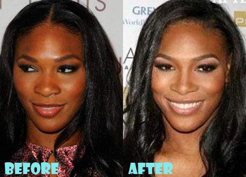 Serena Williams Plastic Surgery Nose Job