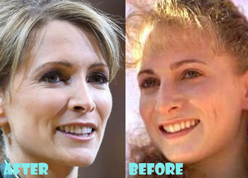 Shannon Miller Plastic Surgery Nose Job