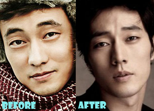 So Ji Sub Plastic Surgery Nose Job