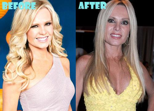 Tamra Barney Plastic Surgery Boob Job