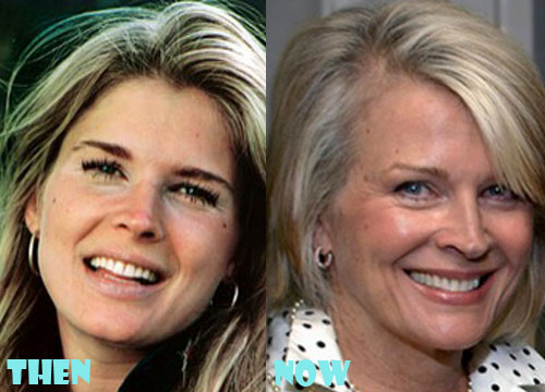 Candice Bergen Plastic Surgery Eyelid Surgery