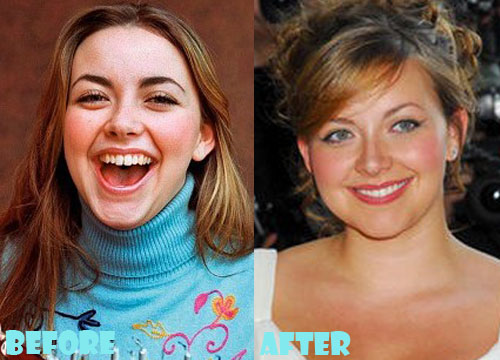Charlotte Church Plastic Surgery Nose Job