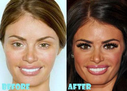 Chloe Sims Plastic Surgery