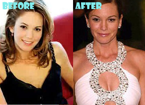 Diane Lane Plastic Surgery Boob Job