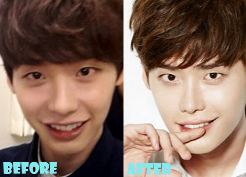 Lee Jong Suk Plastic Surgery Nose Job