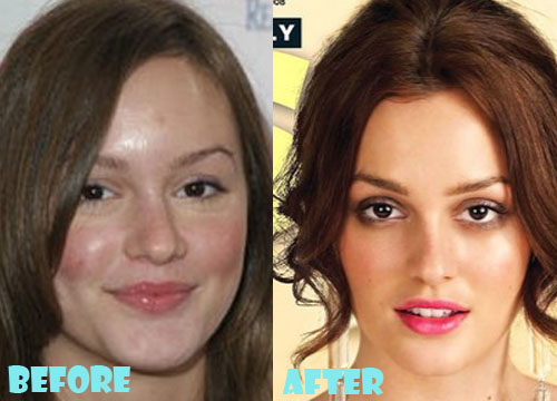 Leighton Meester Plastic Surgery