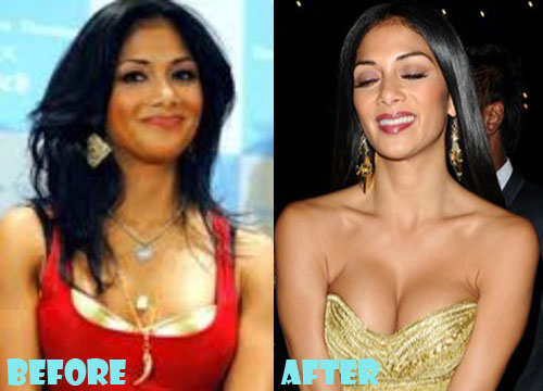Nicole Scherzinger Plastic Surgery Breast Implant
