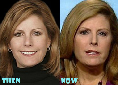 Nina Easton Plastic Surgery Botox, Facelift