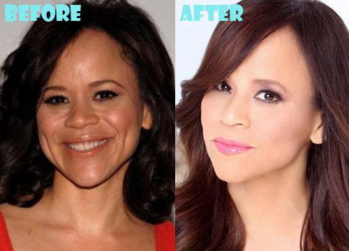 Rosie Perez Plastic Surgery