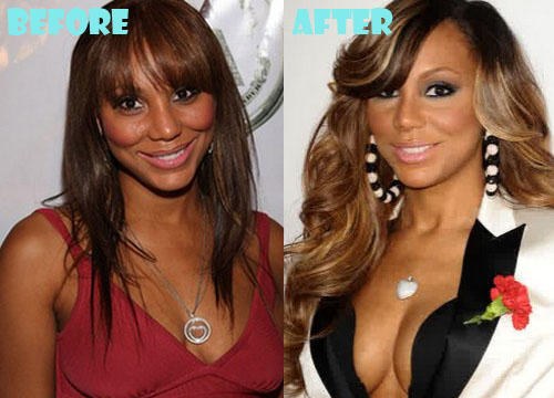 Tamar Braxton Plastic Surgery Breast Implant