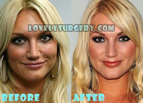 Brooke Hogan Plastic Surgery Nose Job