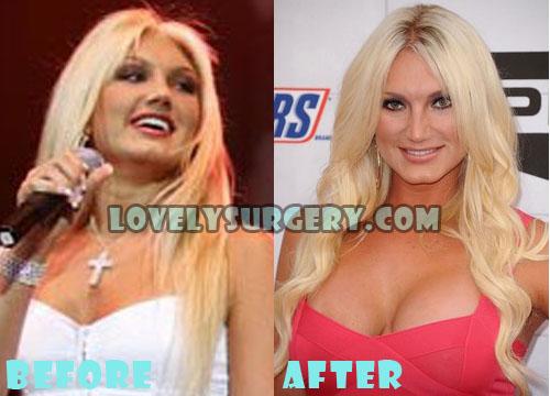 Brooke Hogan Plastic Surgery