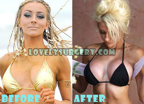 Courtney Stodden Plastic Surgery Breast Augmentation