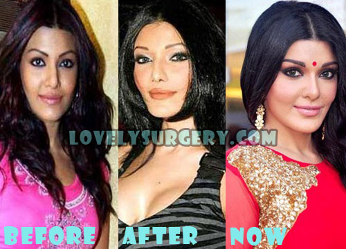 Koena Mitra Plastic Surgery Nose Job