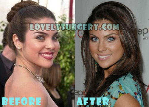 Nadia Bjorlin Plastic Surgery Nose Job