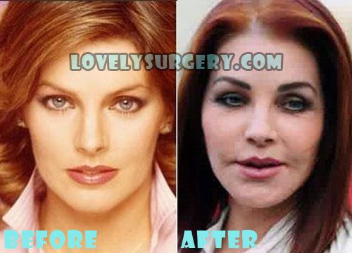 Priscilla Presley Plastic Surgery