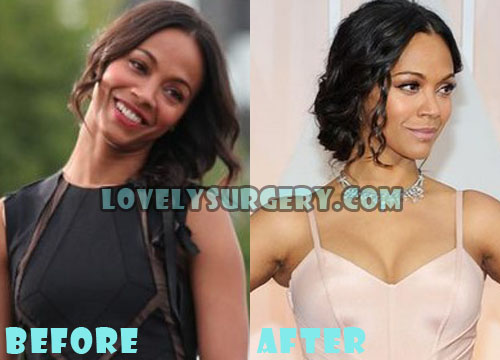 Zoe Saldana Plastic Surgery Breast Implant