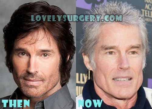 Ronn Moss Bad Plastic Surgery