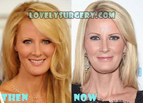 Sandra Lee Plastic Surgery Botox