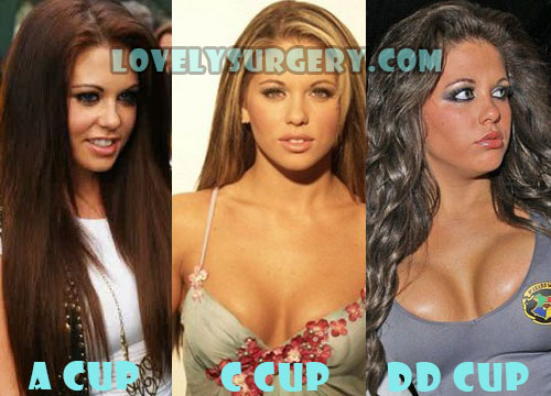Bianca Gascoigne Plastic Surgery Breast Implant