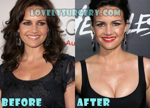 Carla Gugino Plastic Surgery Boob Job