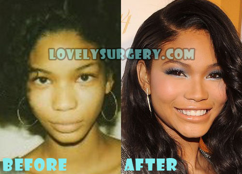 Chanel Iman Plastic Surgery Nose Job
