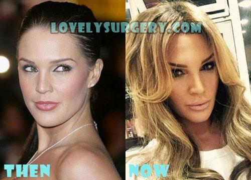 Danielle Lloyd Plastic Surgery Botox