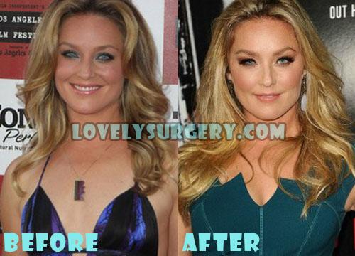 Elisabeth Rohm Plastic Surgery Boob Job